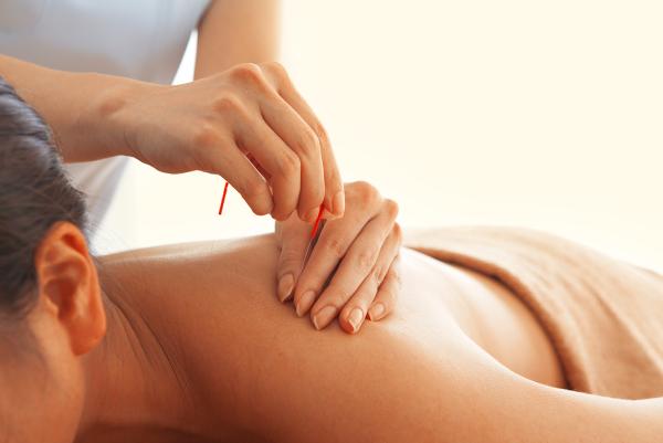 HARI-UP美容鍼✖︎フェイシャル✖︎全身治療