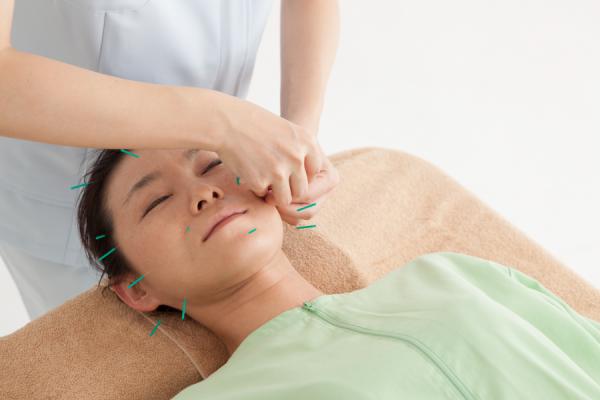 有免許者による美容鍼の施術
